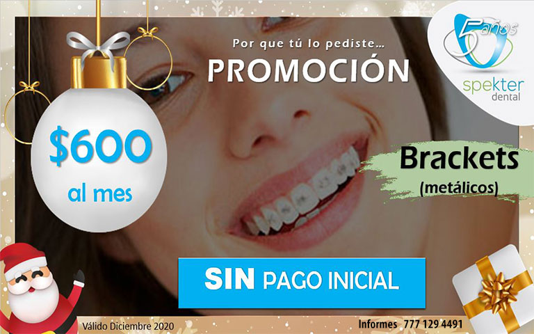 Brackets sin pago inicial